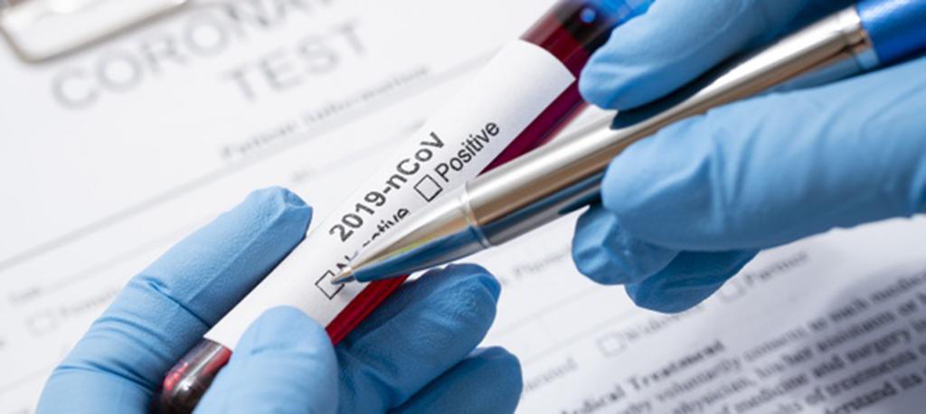 Anadia: testes COVID no Pré-escolar da rede pública assumidos pela Câmara Municipal